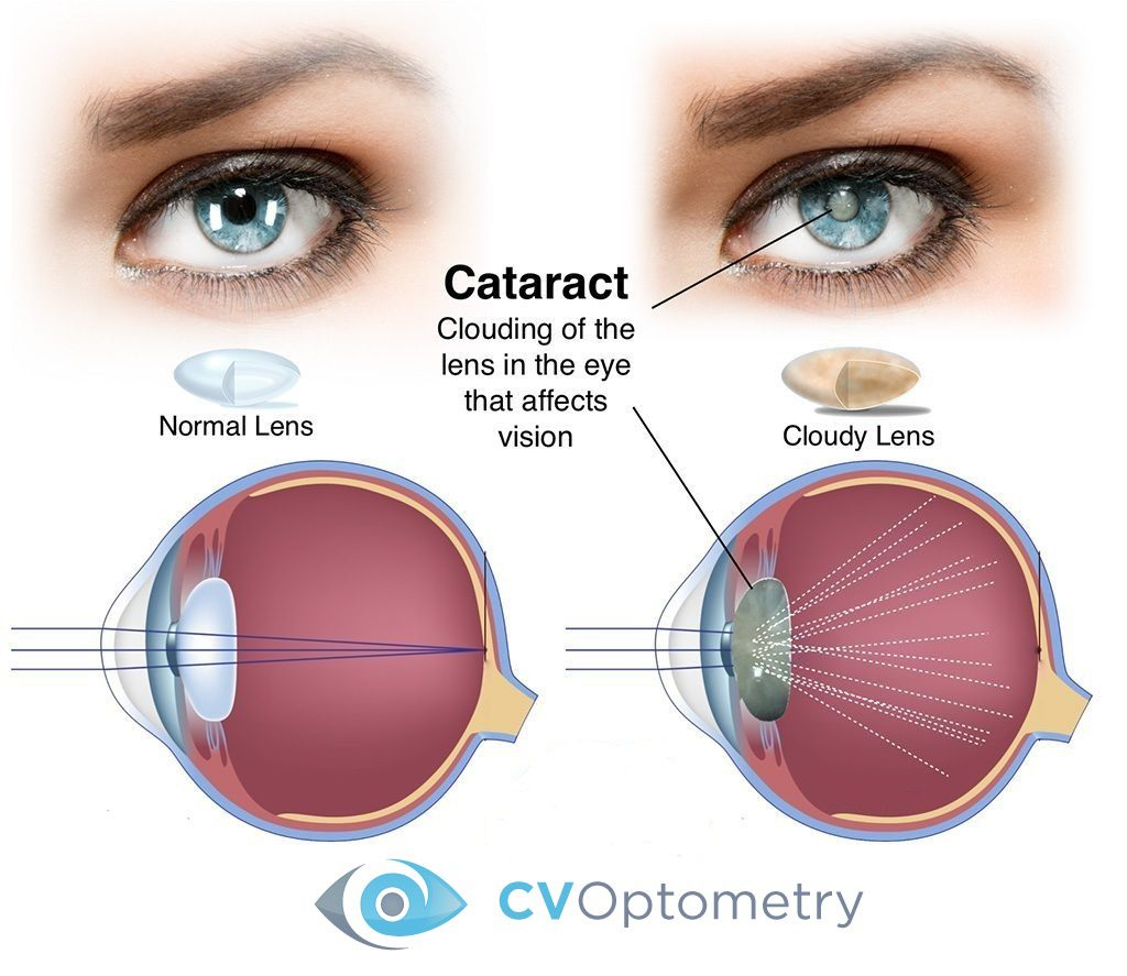 Causes of cataracts and methods of preventing disease